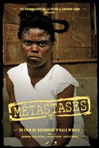 Metastases